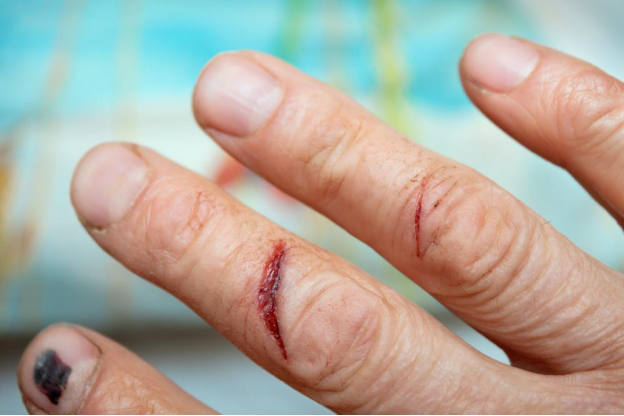 The Ultimate Guide to Preventing Cuts and Lacerations at Work