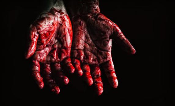 Catastrophic-Bleeding